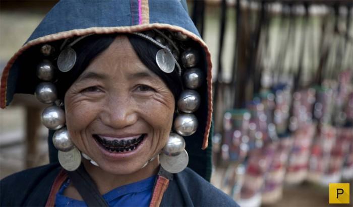 Топ 10: Самые необычные причуды моды, вошедшие в историю (10 фото)