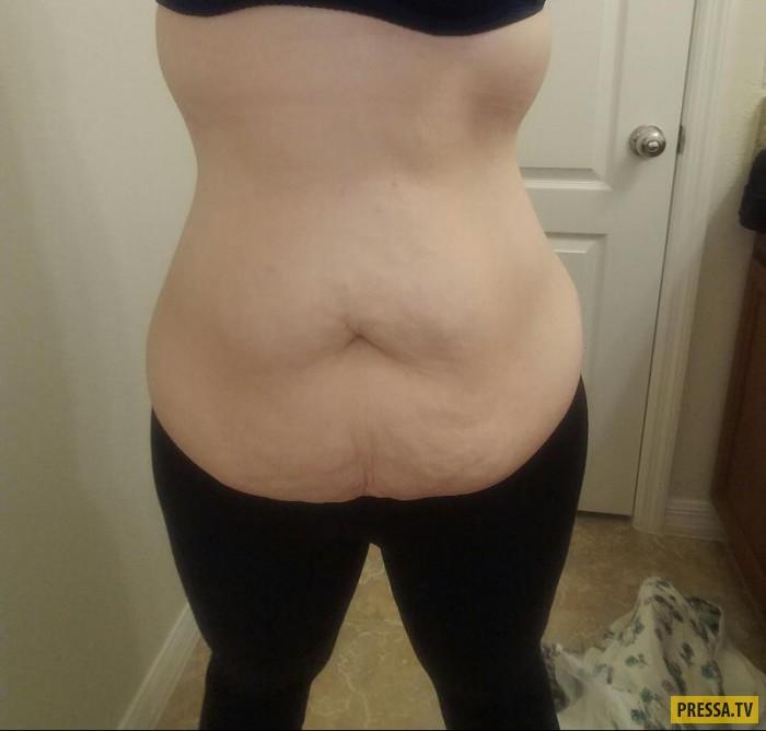 Неприятная сторона похудения (4 фото)