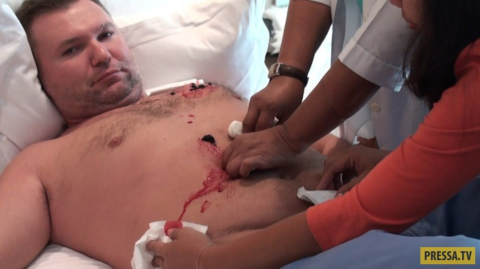 Филиппинские хилеры, что это миф или реальность (7 фото+1 видео)