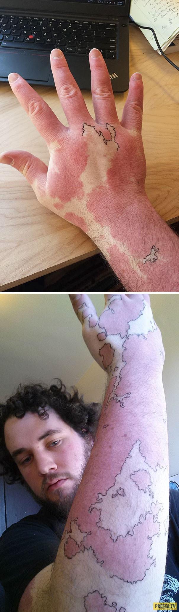 Маскировка проблемных мест на теле с помощью тату (46 фото)