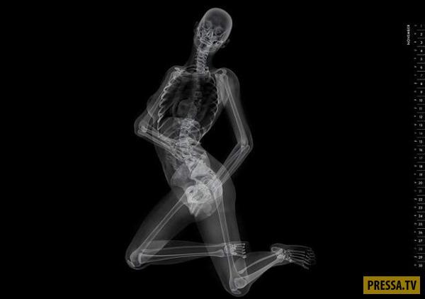 golaya-grud-devushki-pod-rentgenom