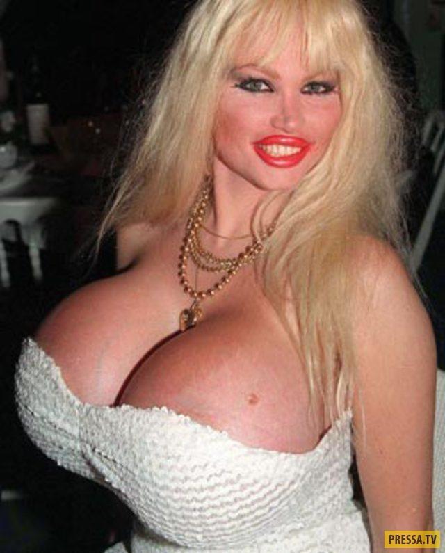 самая большая вмире грудь фото