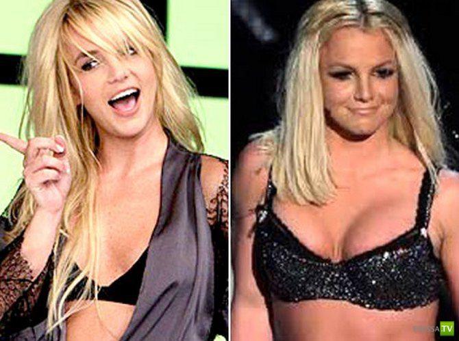 общего океаном, силиконовый грудь до и после знаменитые женщины говорит