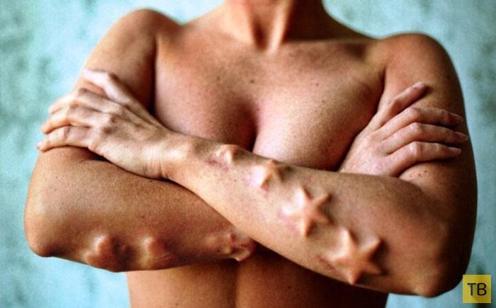 Топ 10: Самые странные модификации тела (10 фото)