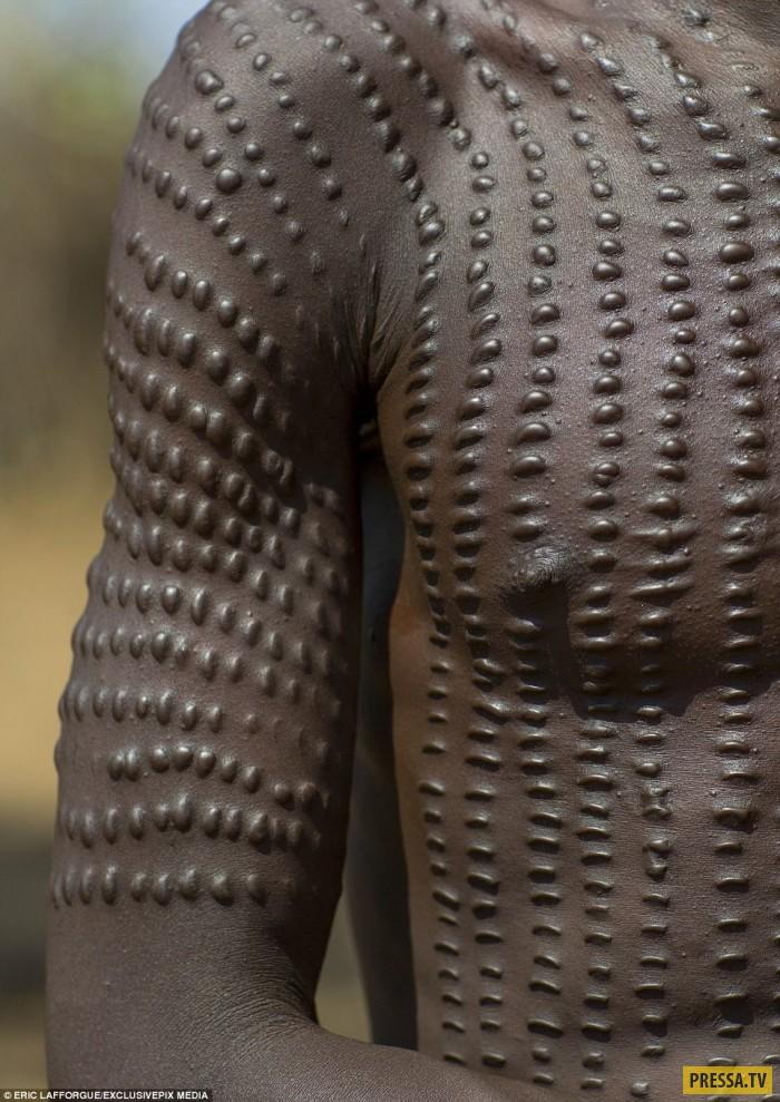 Женщины со шрамом на животе