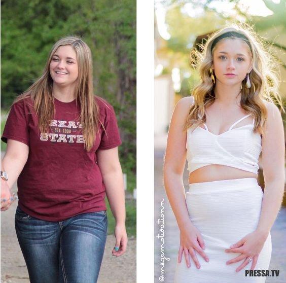 Истории Про Похудение Подростков. Реальные истории и фото сильно похудевших людей. Советы и отзывы о методиках похудения