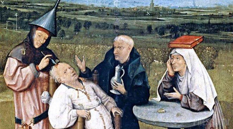 Трепанация черепа - древний  метод лечения головных болей