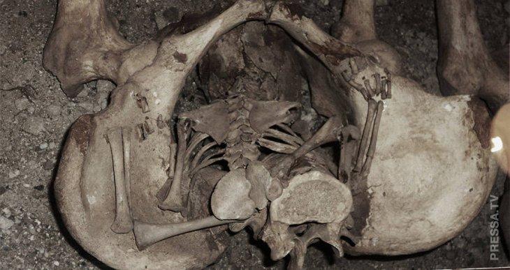 Роды после смерти